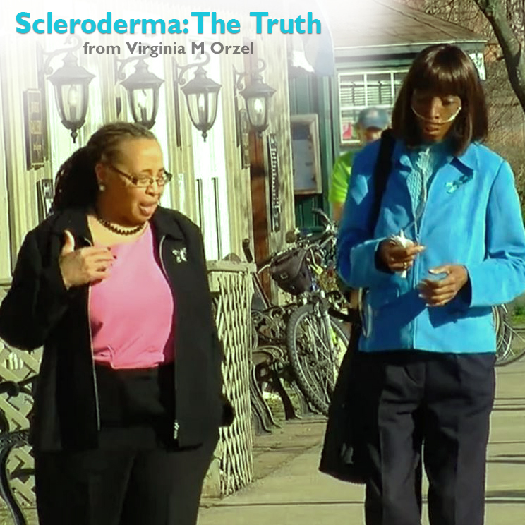 Scleroderma: The Truth
